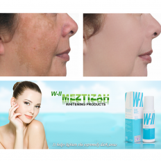 WII Meztizah Whitening Essence - whitening,essence,face-care